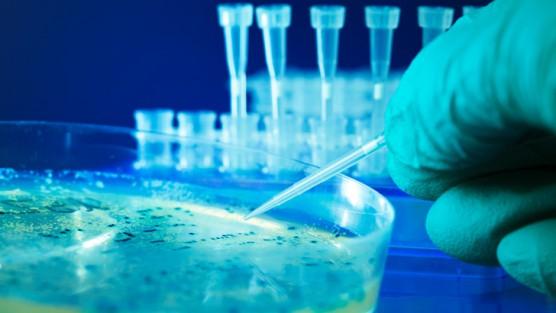 Nghiên cứu vi khuẩn kháng kháng sinh trong môi trường nước